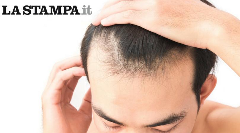 Calvizie come funziona il metodo PRP che inietta nel cuoio capelluto sostanze ricavate dal plasma – La Stampa.it